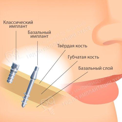 На фото — схема базальной имплантации