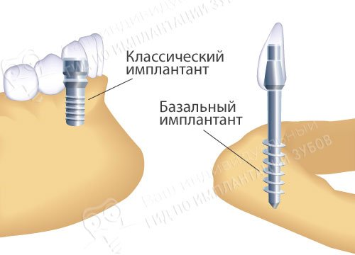 На фото — разница в установке классического и базального имплантов