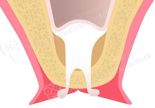 На фото — компенсация недостатка костной ткани при закрытом синус-лифтинге