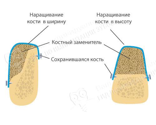 На фото — увеличение объема кости методом направленной костной регенерации