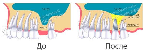 На фото — схема проведения операции синус-лифтинга