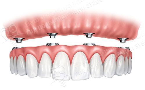 Условно-съемные протезы зубов