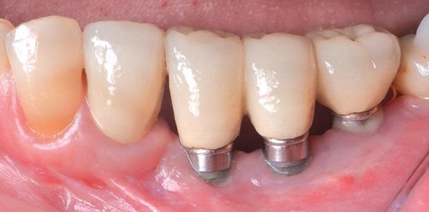 3d снимки зубов