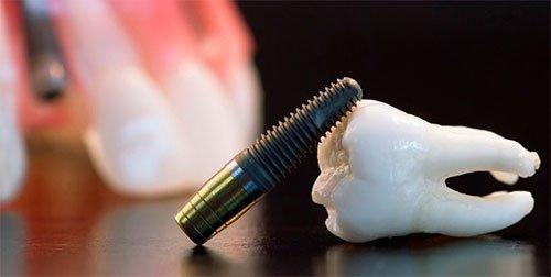 Что же такое одномоментный метод имплантации?